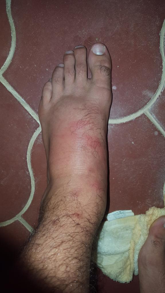 swollen foot 10.30.jpg