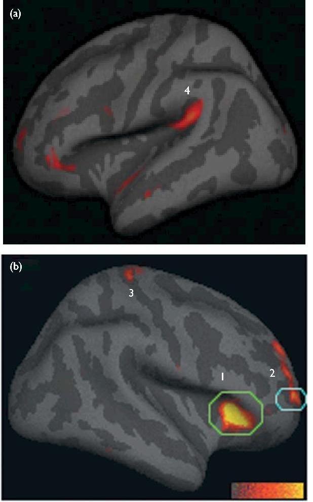 Brain Activity during Meditation